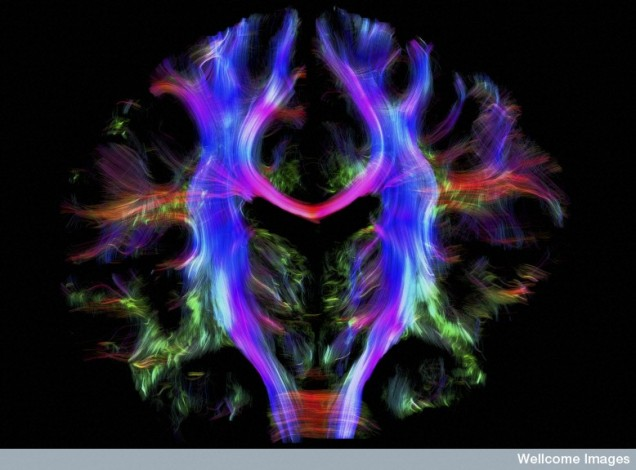 B0010280 Healthy human brain from a young adult, tractography