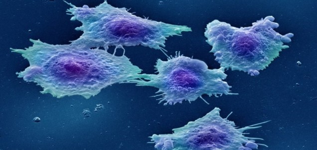 Cancer cells-crop